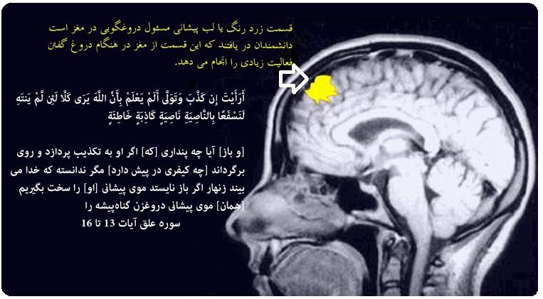 (...◕✿◕◕✿◕ مغز انسان در قرآن/اشاره قرآن به وجود مرکز دروغگویی در قسمت جلوی مغز  ◕✿◕◕✿◕...)